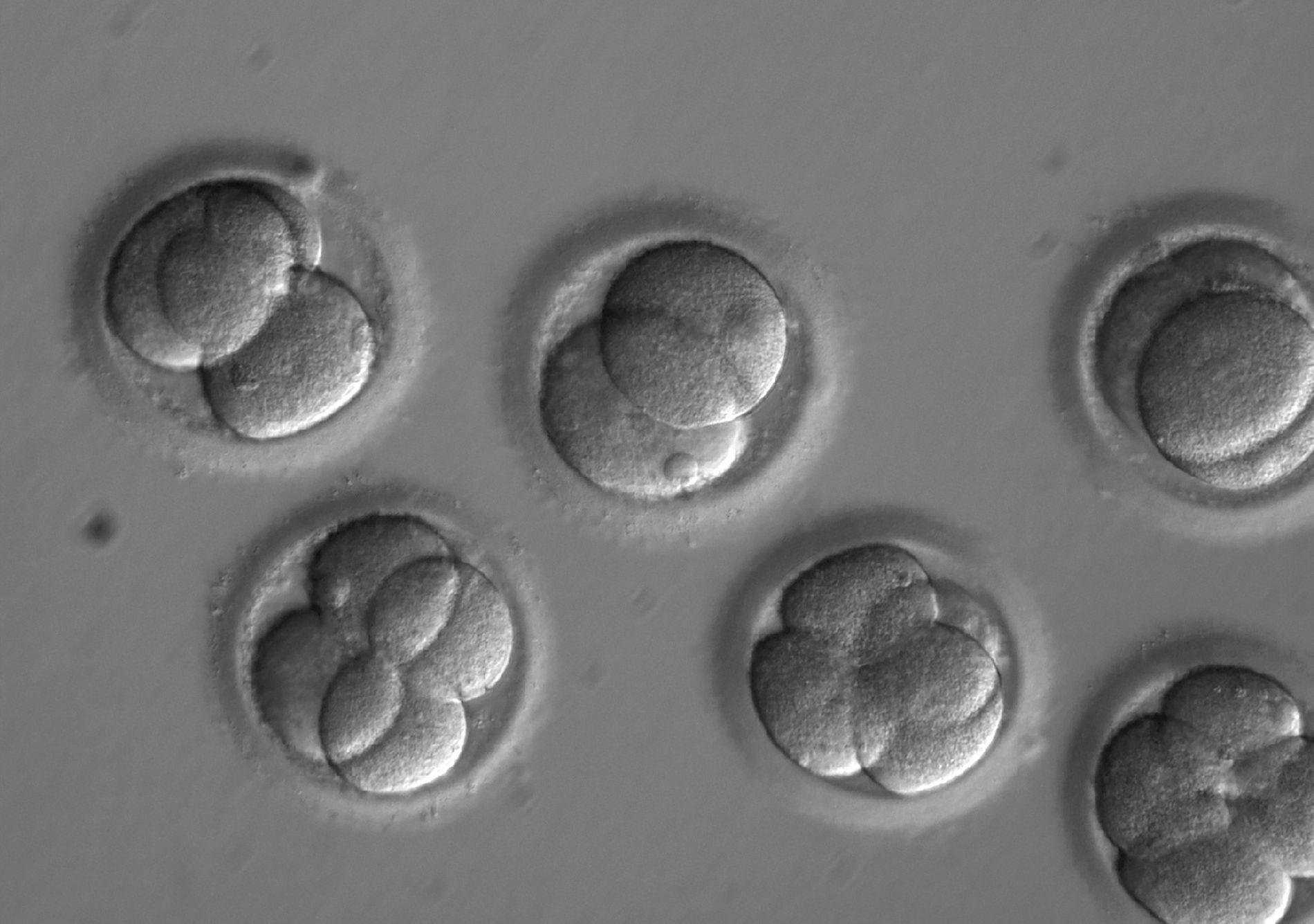 Dois dias depois de terem sido injetados com uma enzima que edita o gene, estes embriões humanos em desenvolvimento estavam livres da mutação causadora da doença.