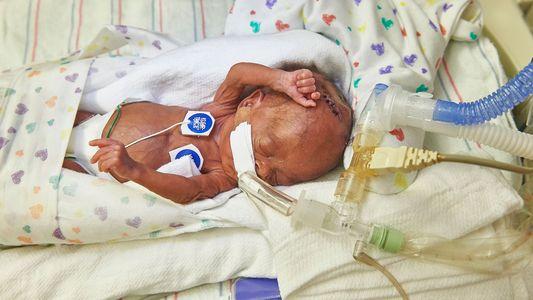 Como Um Útero Artificial Pode Trazer Uma Nova Esperança Para Bebés Prematuros