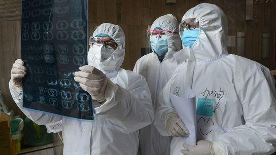 Médicos examinam uma imagem de tomografia de um pulmão num hospital do condado de Yunmeng, na ...