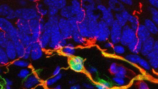 Uma imagem de microscópio mostra a estrutura de um novo órgão chamado complexo nociceptivo glio-neural, aqui ...