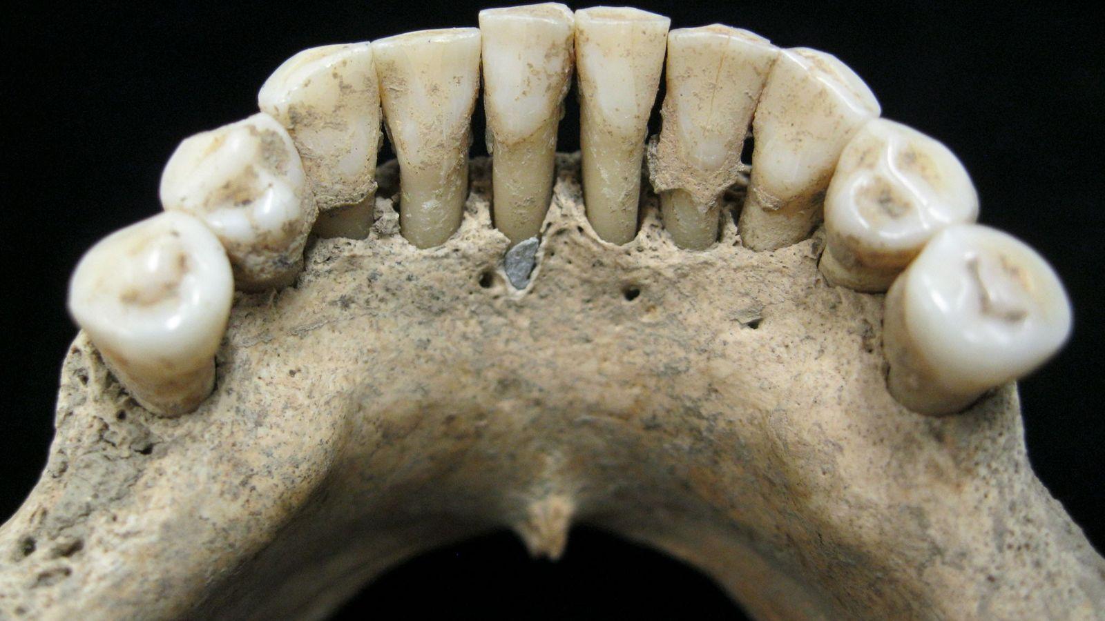 Uma partícula de lápis-lazúli precioso presa na placa dentária fossilizada de uma mulher medieval.