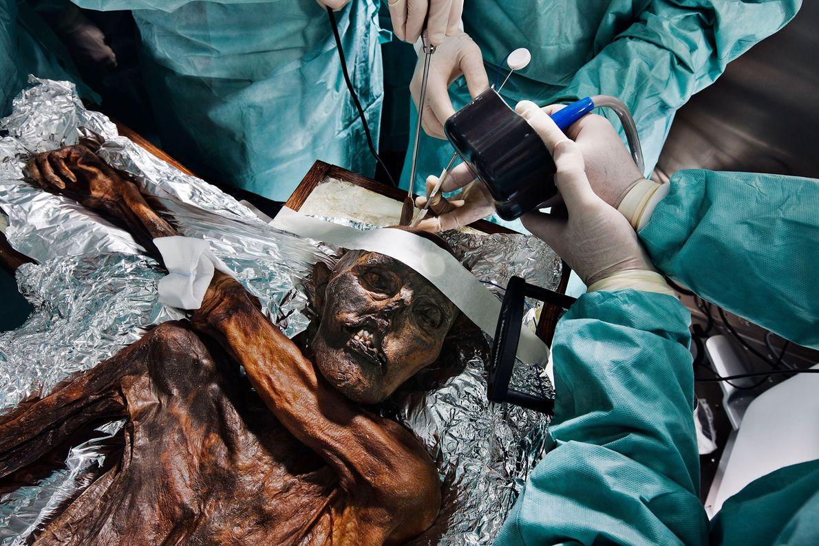 Cientistas estudam os restos mortais com 5300 anos de Ötzi, o Homem do Gelo, à procura ...