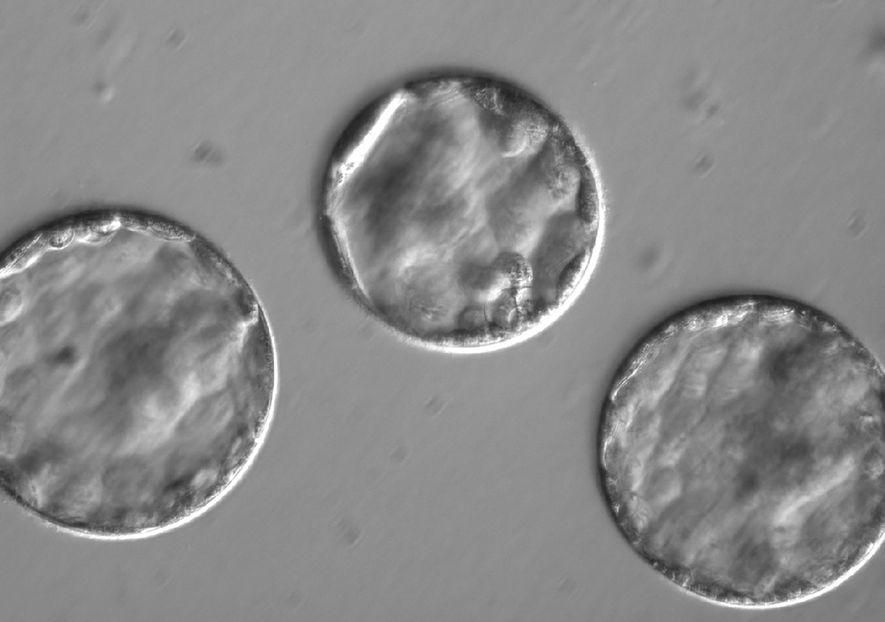 A equipa de investigadores permitiu que os embriões se desenvolvessem até se tornarem blástulas, que se veem aqui.