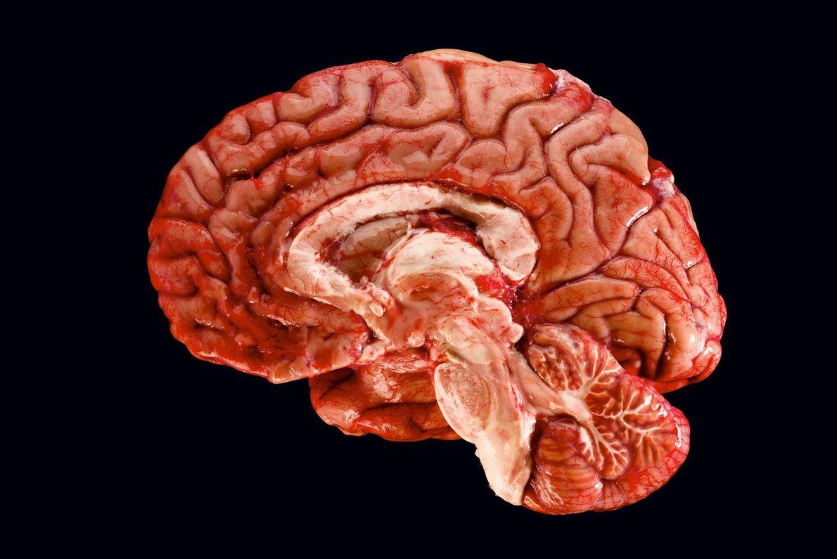 Este corte de um cérebro humano revela as diversas áreas que precisam de colaborar entre si ...