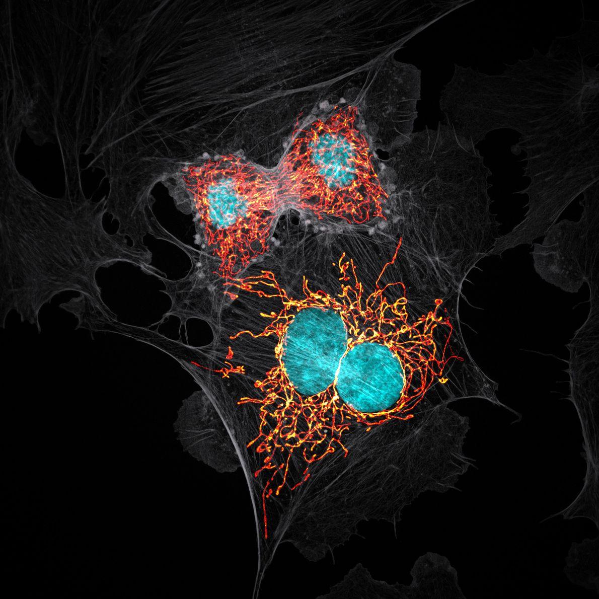 Em 1979, os investigadores criaram células em laboratório extraídas da artéria pulmonar de uma vaca, produzindo ...