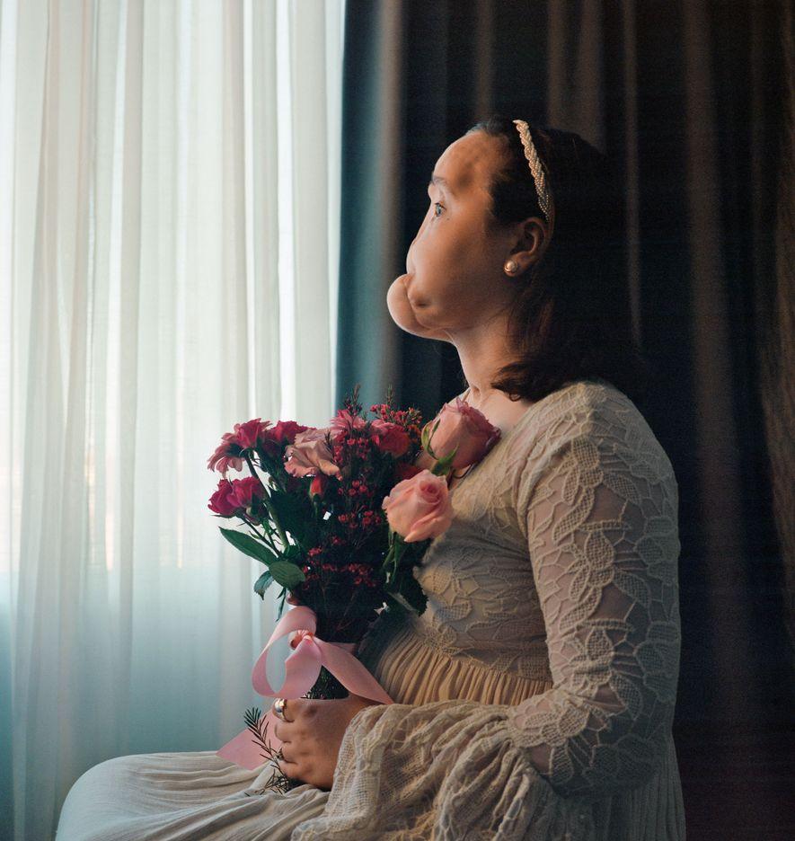 Antes de Katie Stubblefield fazer um transplante de rosto, posou para este retrato, mostrando a face ...