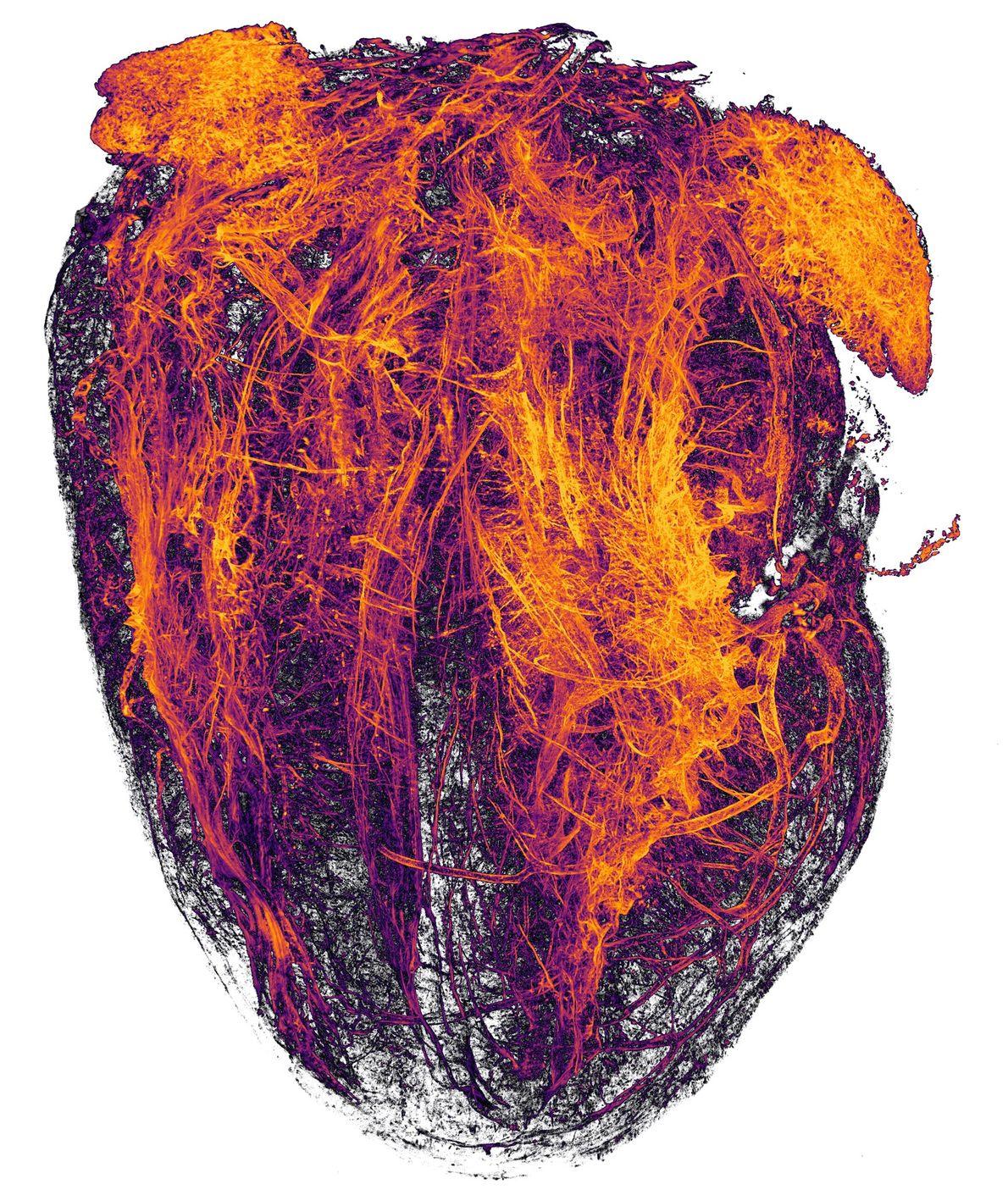 Estes canais fogosos, fotografados pelos investigadores do Hospital Universitário de Essen, são os vasos sanguíneos do ...