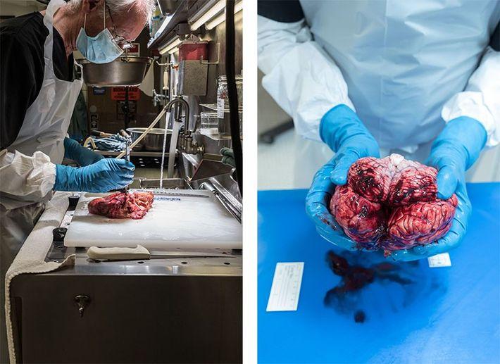 Esquerda: Patologistas como John C. Hiserodt diagnosticam condições médicas através de exames a órgãos após a ...