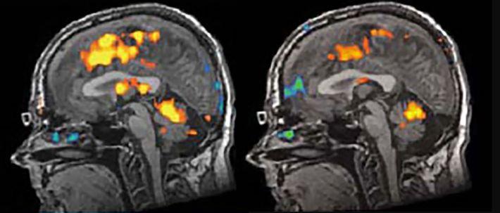 As imagens do cérebro de uma pessoa não identificada do estudo de Hoffman mostram que as ...