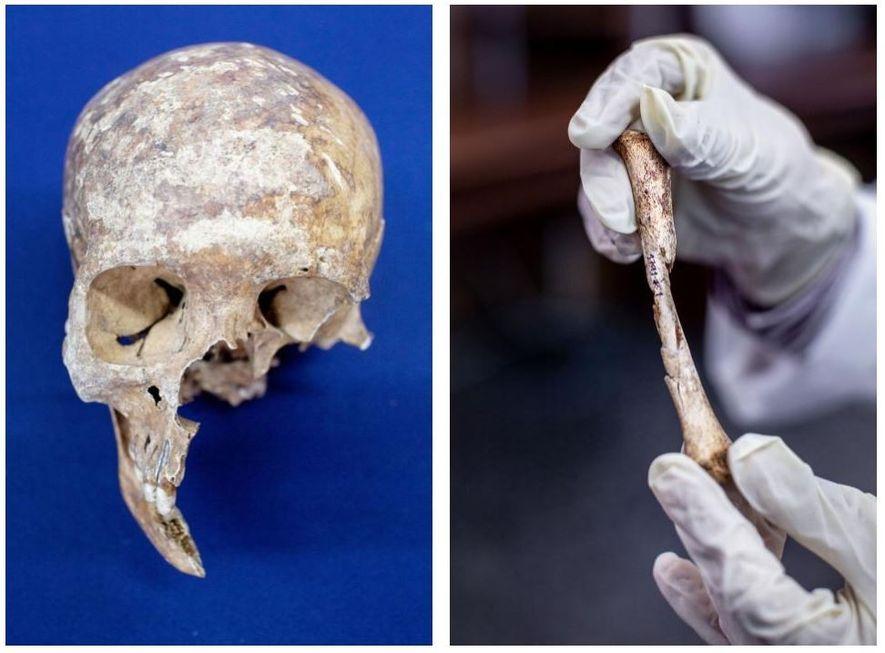 Esquerda: O crânio de uma vítima que levou um tiro na face. O laboratório tem cerca ...