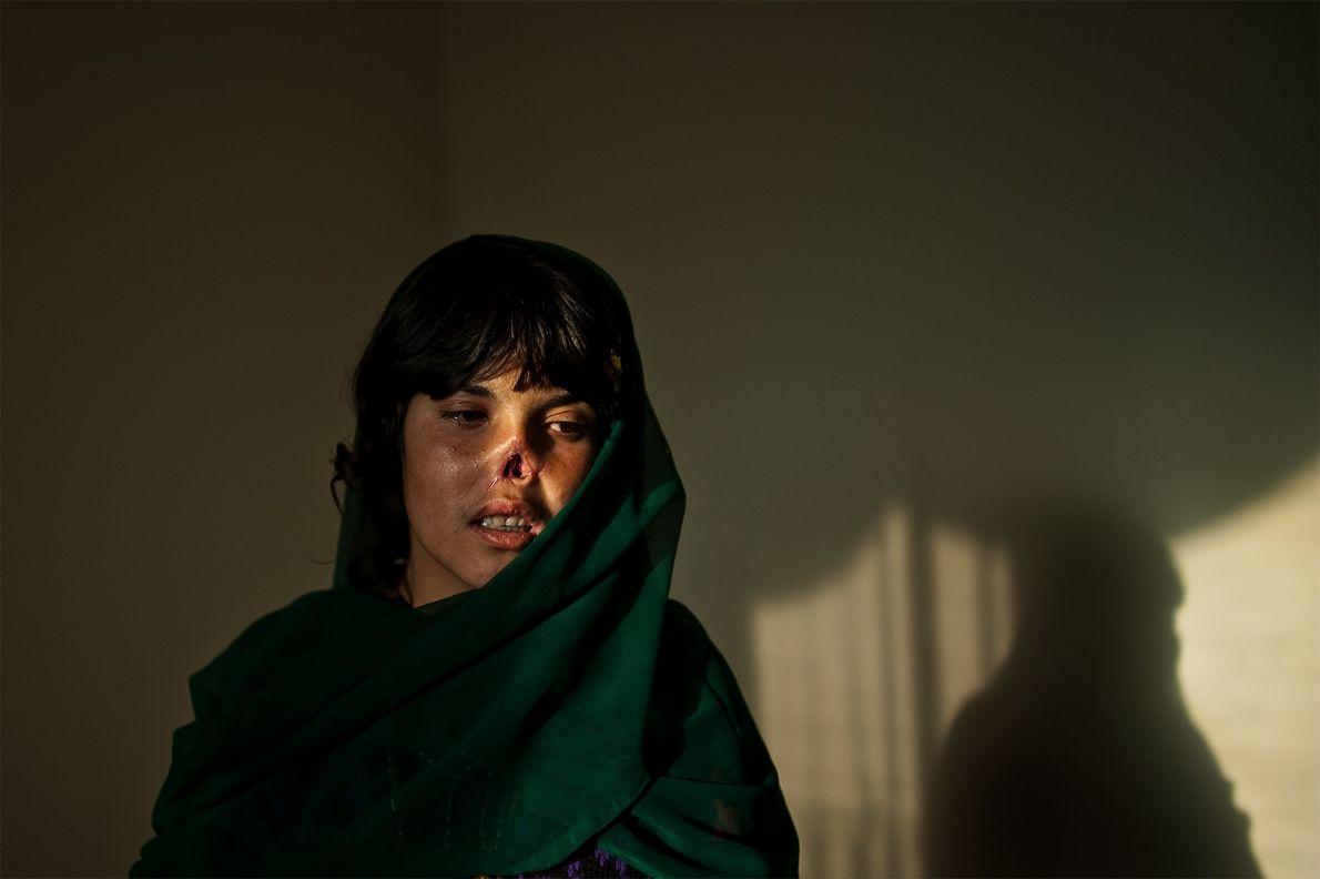Mulher castigada e mutilada no Afeganistão