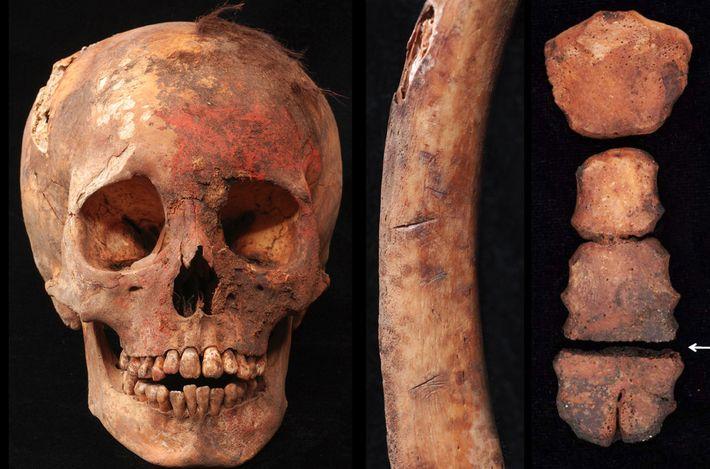 Ossadas: crânio, costela e esterno