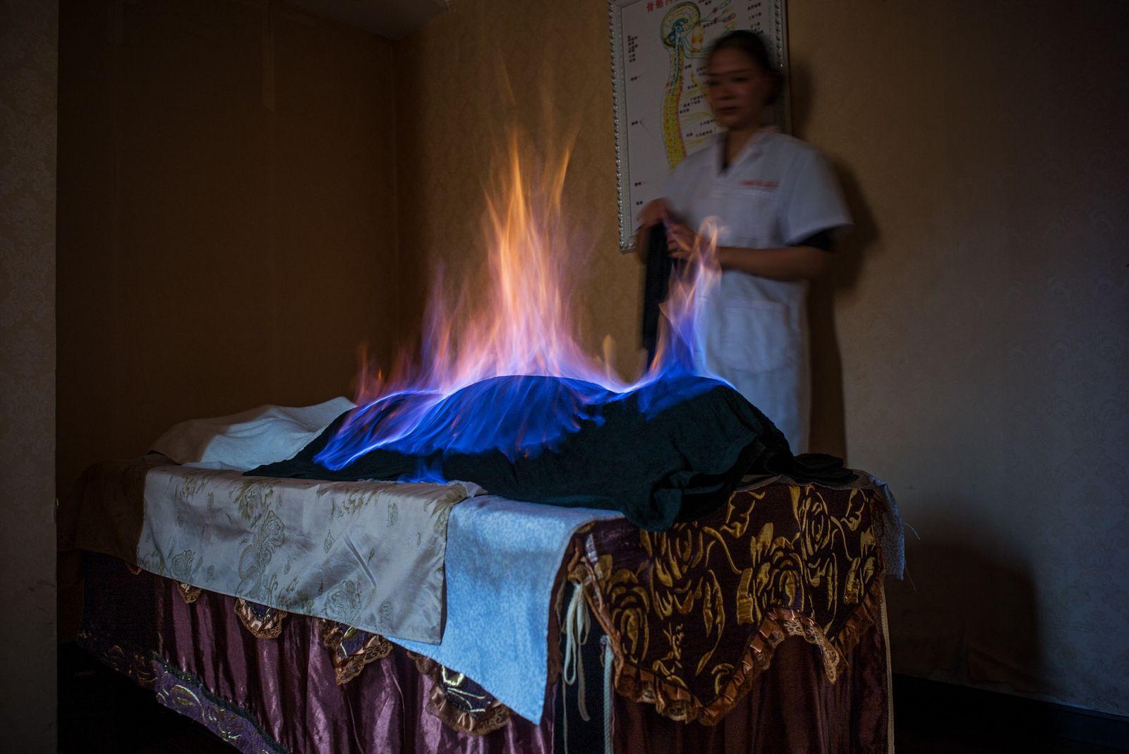 Numa sessão de tratamento com fogo, em Chengdu, na China, um pano embebido em álcool é ...