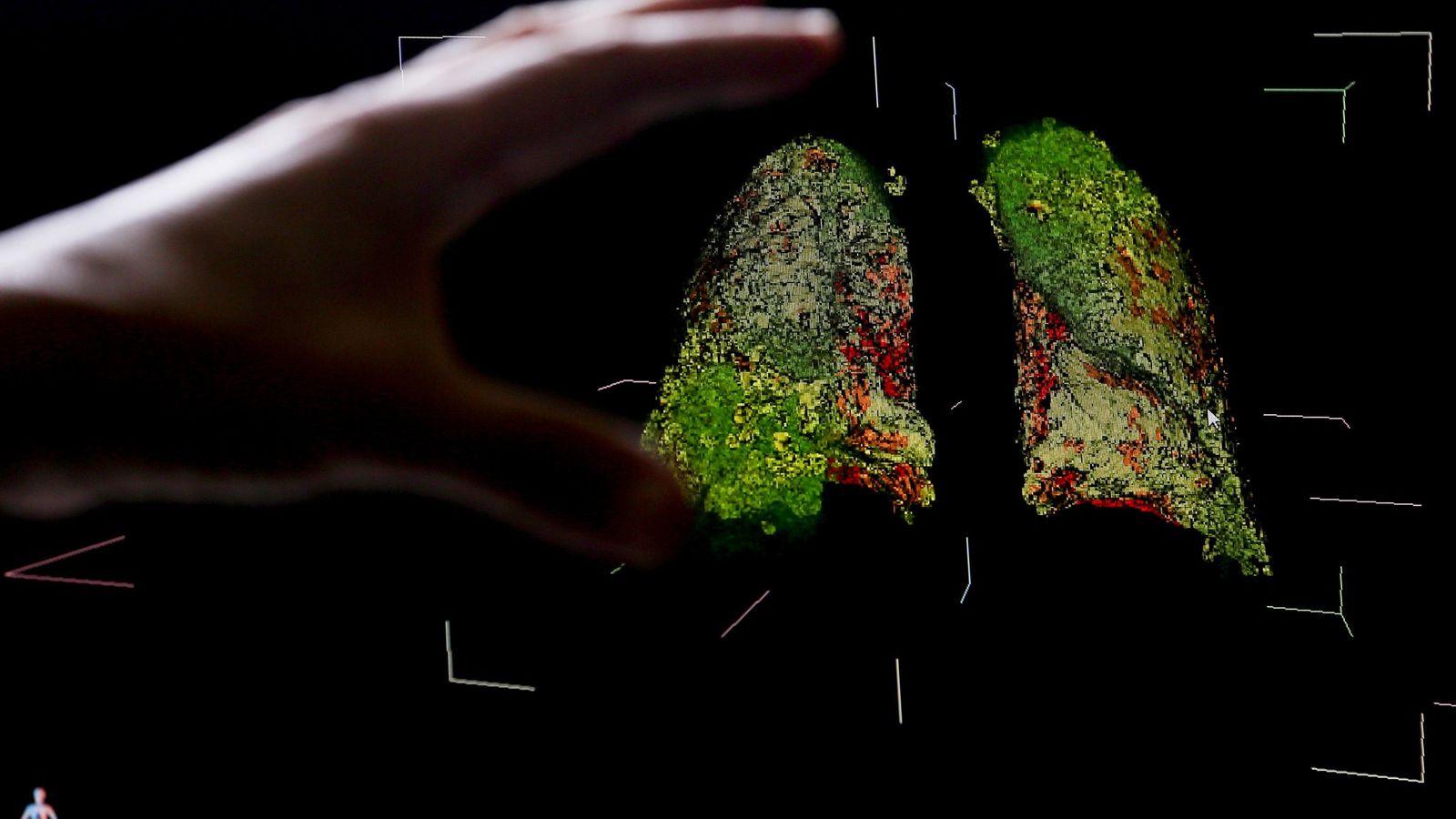 Esta imagem 3D de dados de tomografia exibe sintomas da COVID-19 nos pulmões e os danos ...