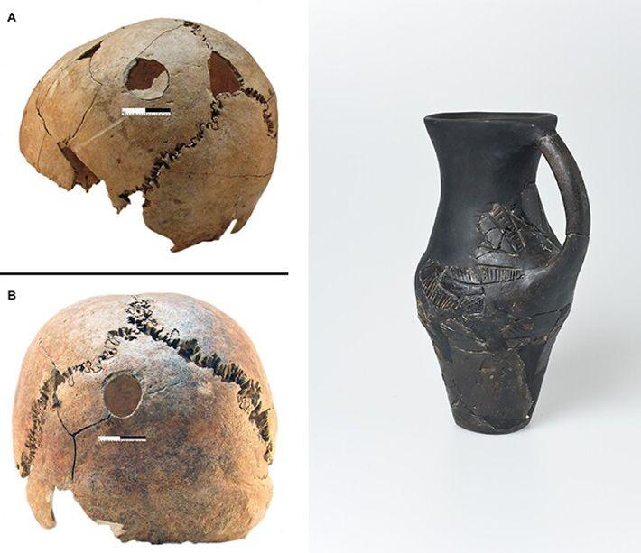 Esquerda: Os arqueólogos identificaram sinais de trauma por contusão nos crânios de um menino (em cima) ...