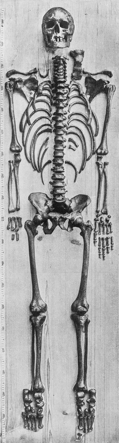 O que se acredita ser o esqueleto de Bach, fotografado em 1895 pelo anatomista Wilhelm His. Andreas Otte examinou a mão esquerda, já que faltam muitos ossos na mão direita.