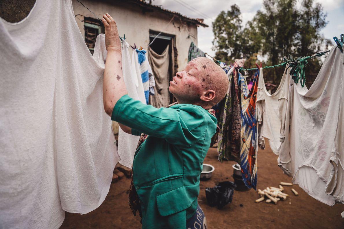 Viver Com Albinismo