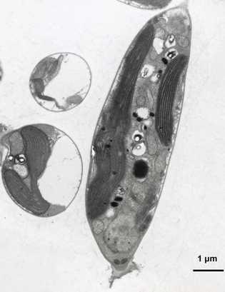 Células de Munda aquilonaris
