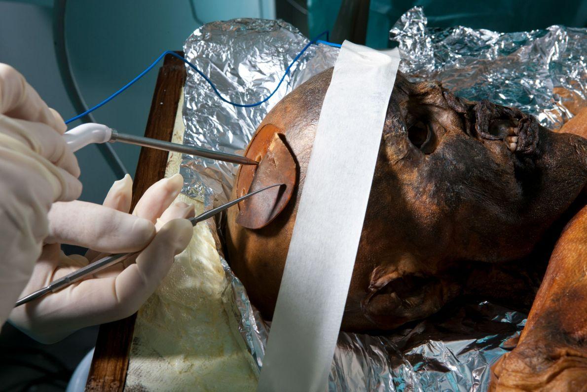 Neurocirurgiões recolhem amostras do cérebro de Ötzi.