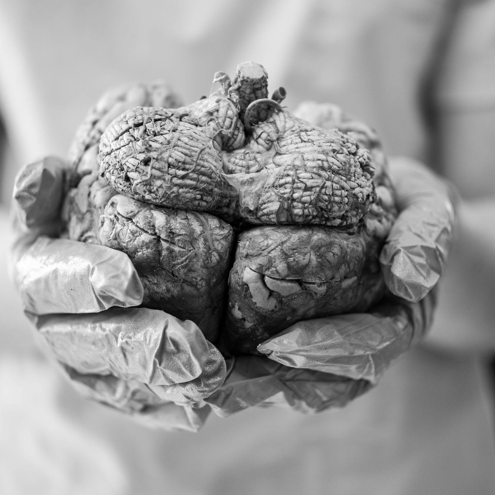 Gordura visceral - estudo pioneiro