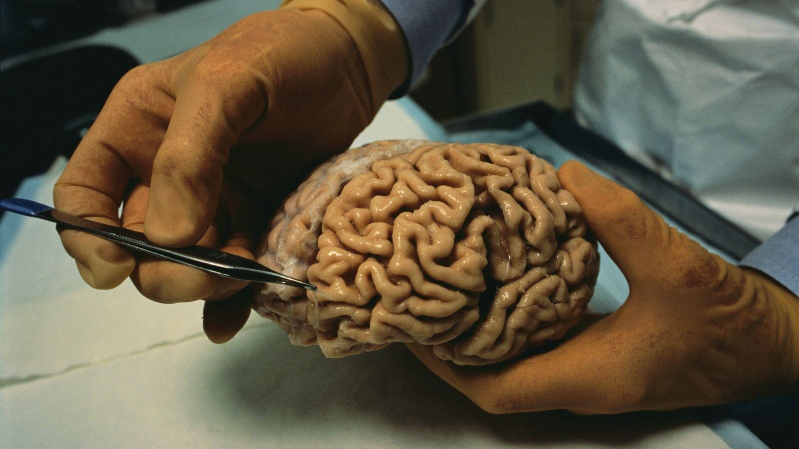 Estudo lesões cerebrais