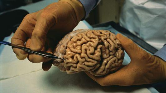 Combater lesões cerebrais? Investigadores descobrem que pode ser possível