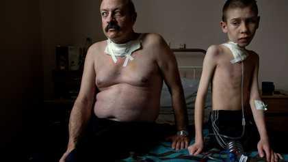 Crianças nascidas de sobreviventes de Chernobyl não têm mais mutações genéticas