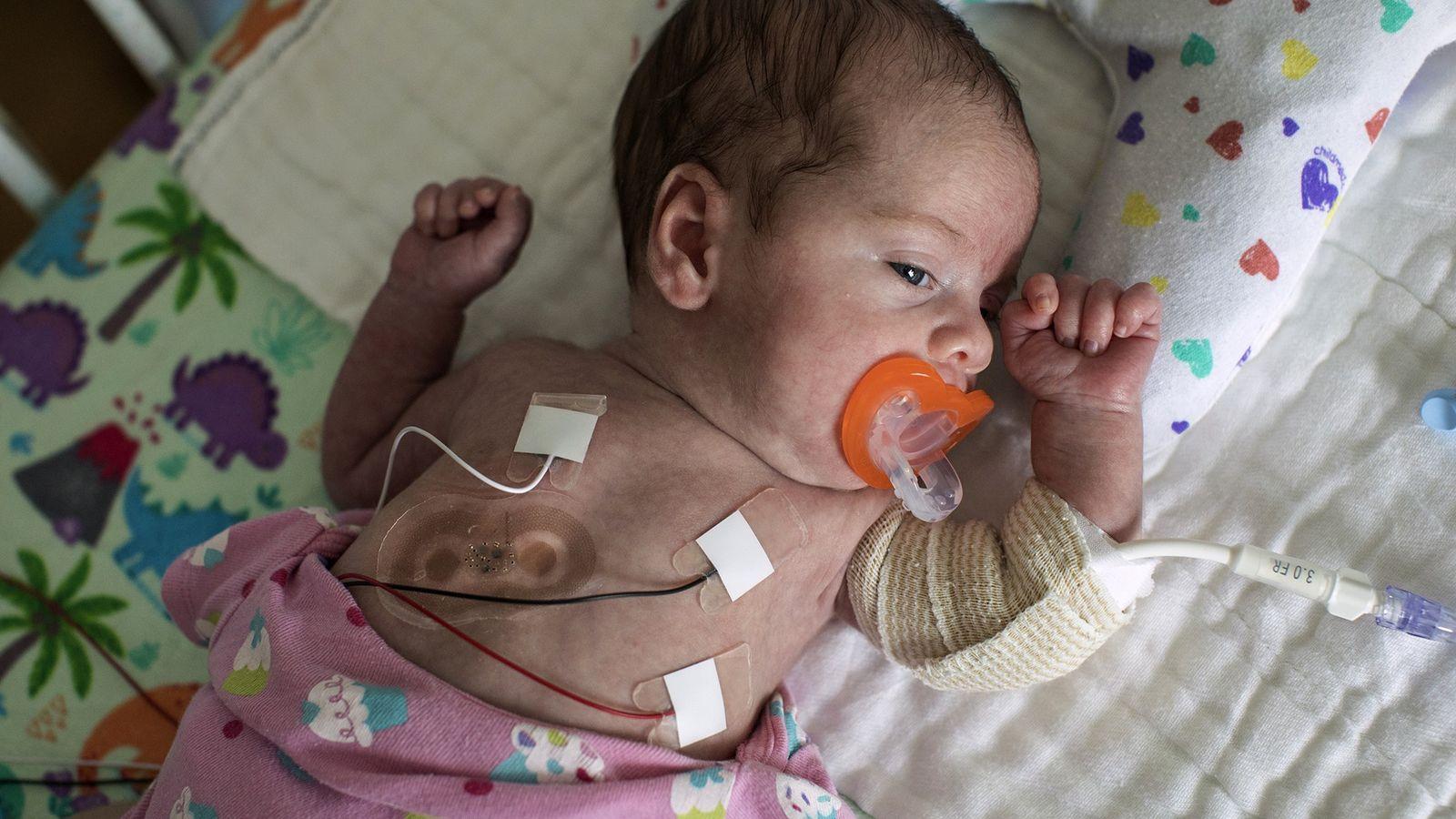 Riley, bebé prematura, à máquina que lhe mede os sinais vitais, na unidade de cuidados ...