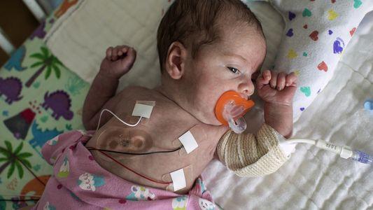 Novos Sensores Permitem Melhor Cuidado a Bebés Prematuros