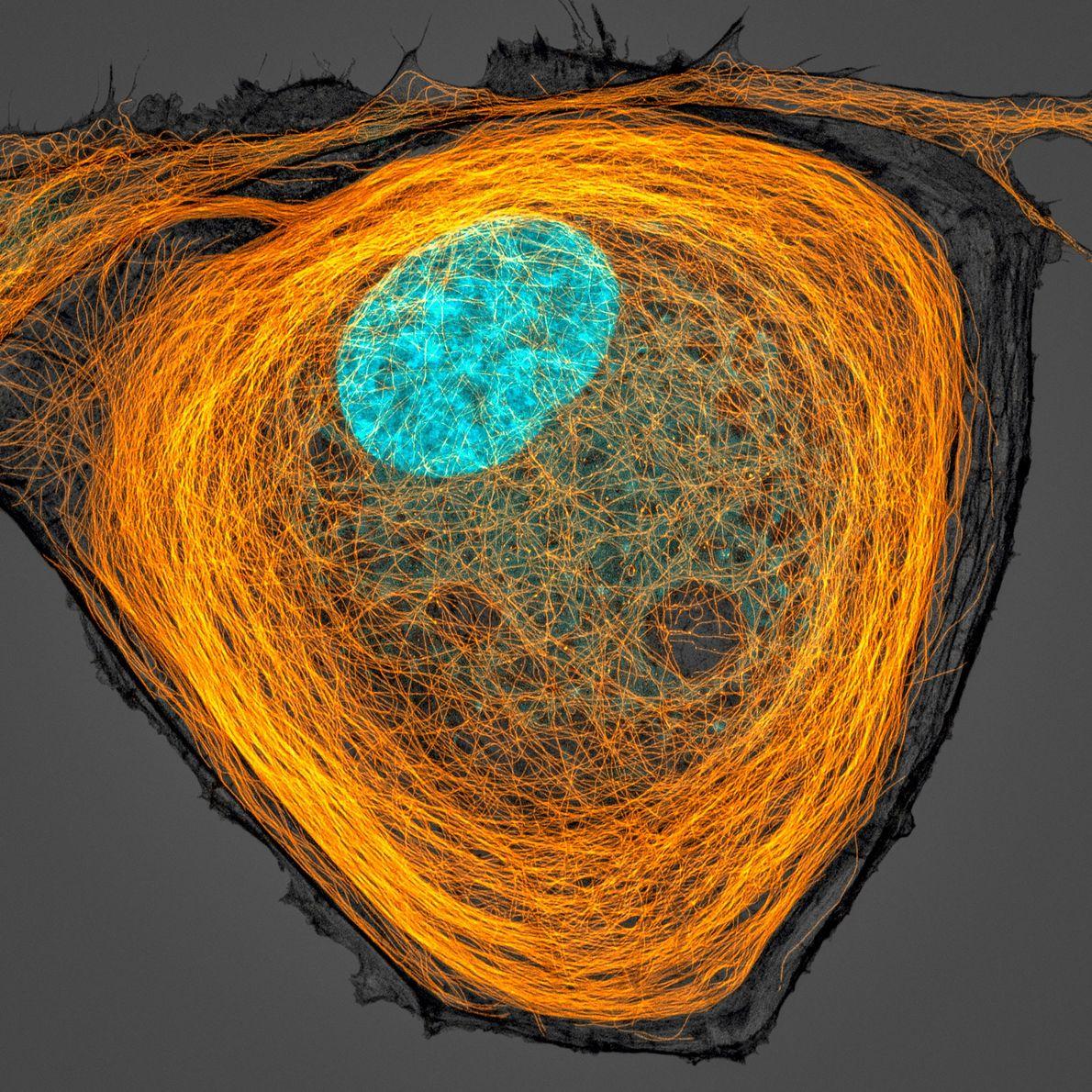 Jason Kirk, da Faculdade de Medicina Baylor, captou um núcleo colorido (a azul) rodeado por segmentos ...