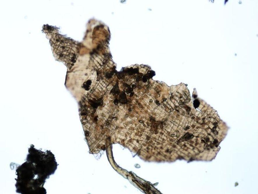 Uma pequena amostra de tecido de uma planta não digerida identificada no conteúdo estomacal do homem ...